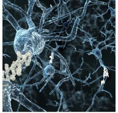 Curso de Actualización Médica en Neurología con prácticas